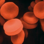¿Qué son las anemias?